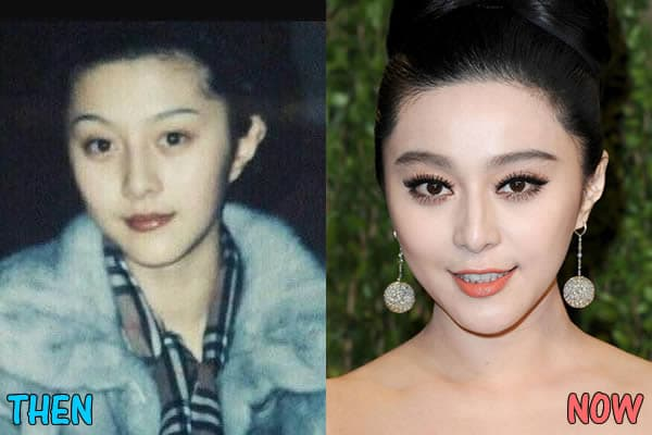 My Plastic Surgery Before And After photo - 1