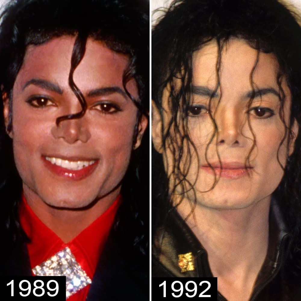 Micheal Jacks Before Plastic Surgery photo - 1