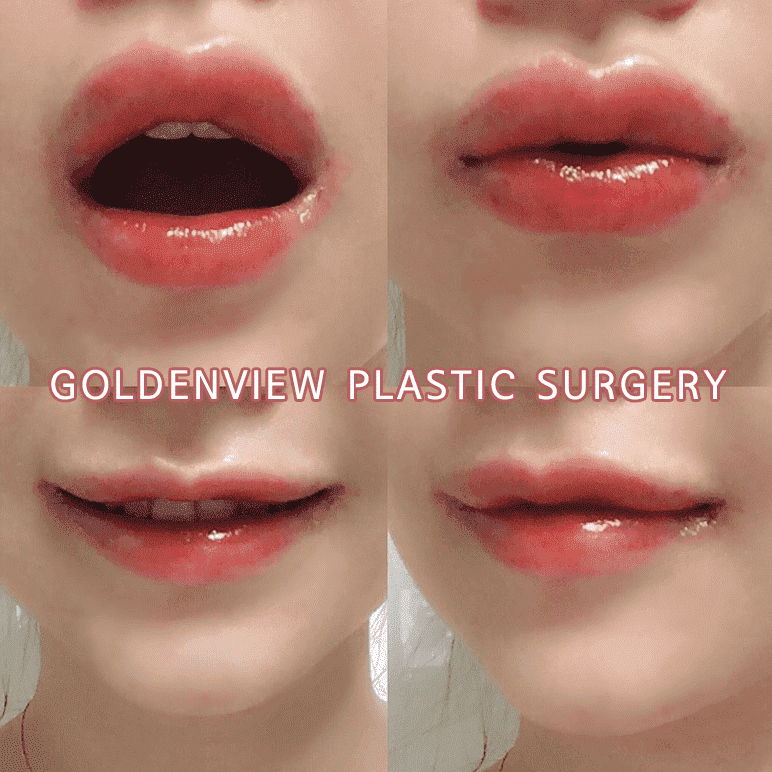 Mouth Plastic Surgery Before And After photo - 1