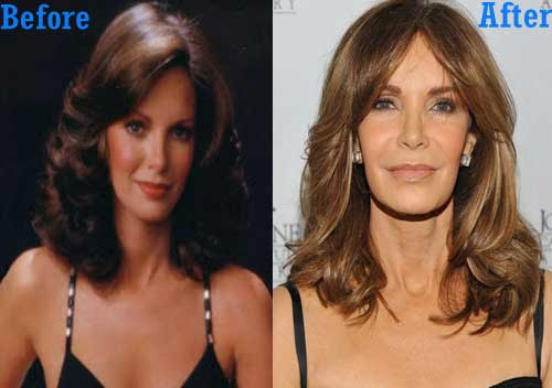 Actress Plastic Surgery Before After photo - 1