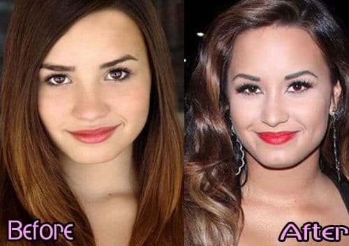 Asian Stars Plastic Surgery Before After photo - 1