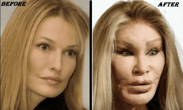 Bad Plastic Surgery Before After photo - 1