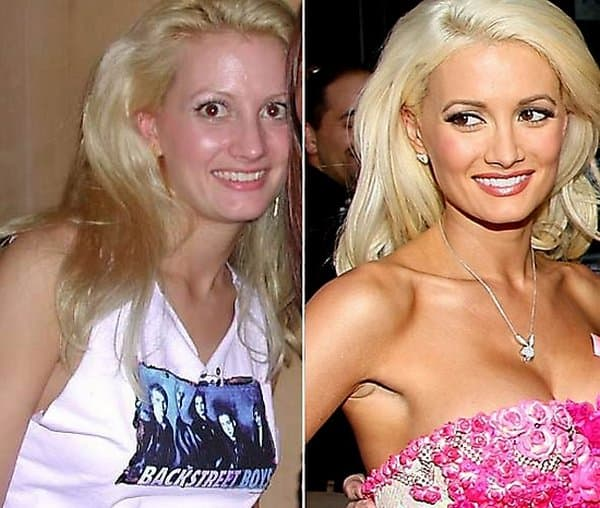 Before And Ater Plastic Surgery photo - 1