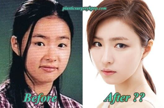 Boa Before And After Plastic Surgery photo - 1