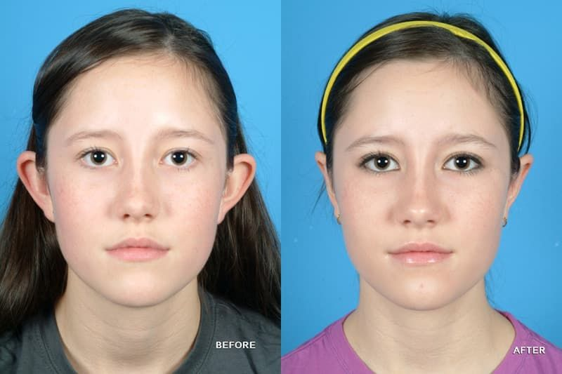 Can you get plastic surgery on your ears photo - 1