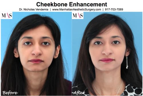 Cheekbone Plastic Surgery Before After photo - 1