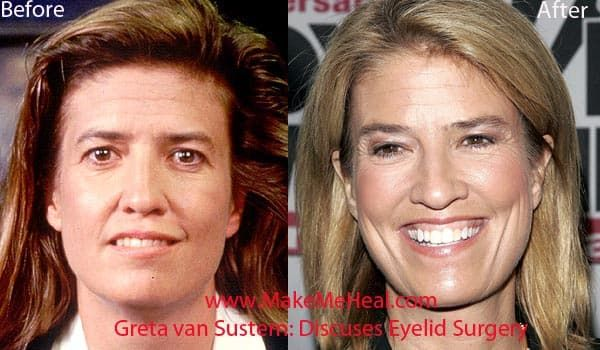 Greta Sustern Before Plastic Surgery photo - 1