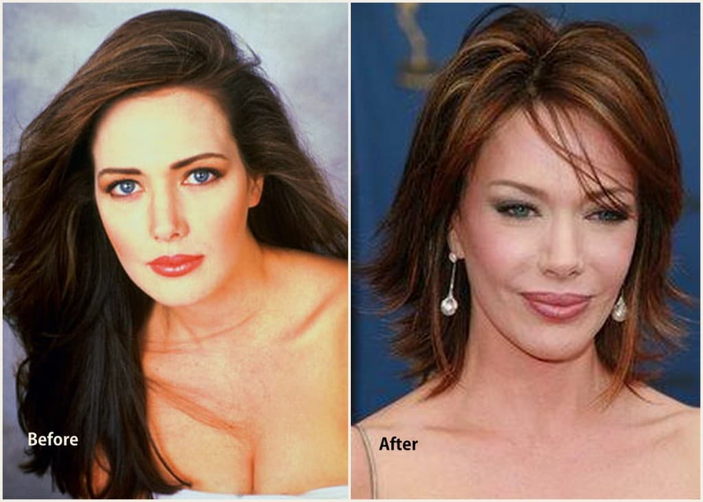 Hunter Tylo Plastic Surgery Before After photo - 1