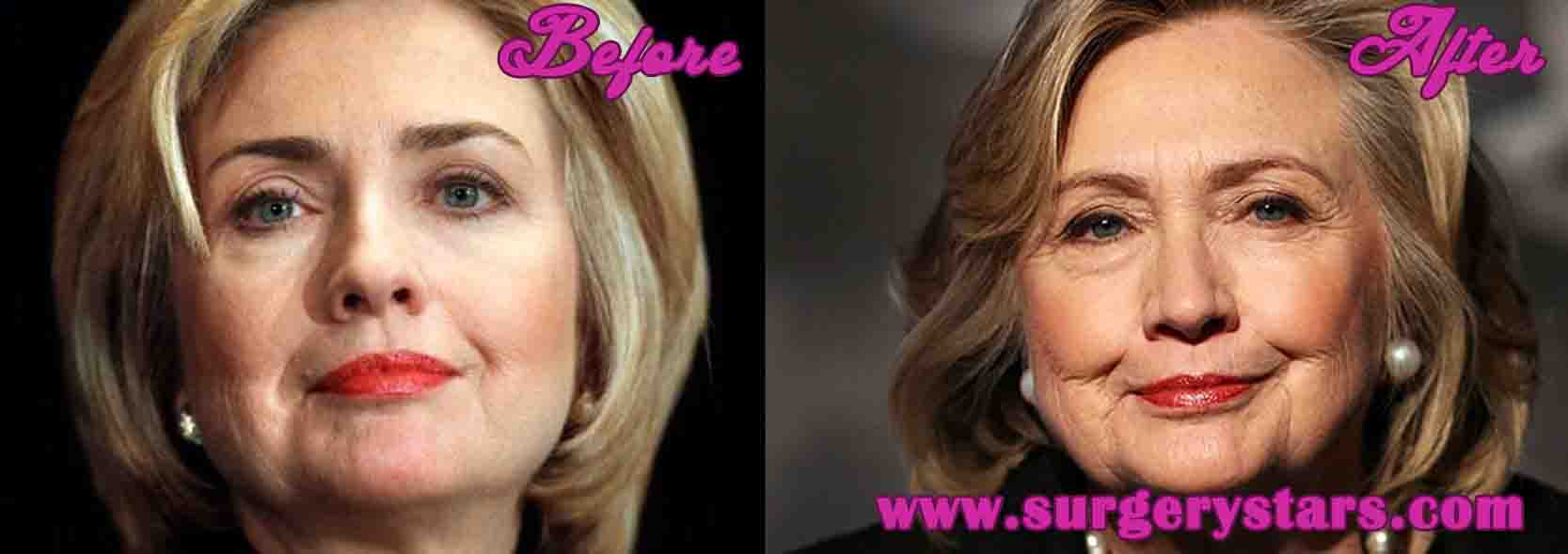 Hilary Clinton Before Plastic Surgery photo - 1