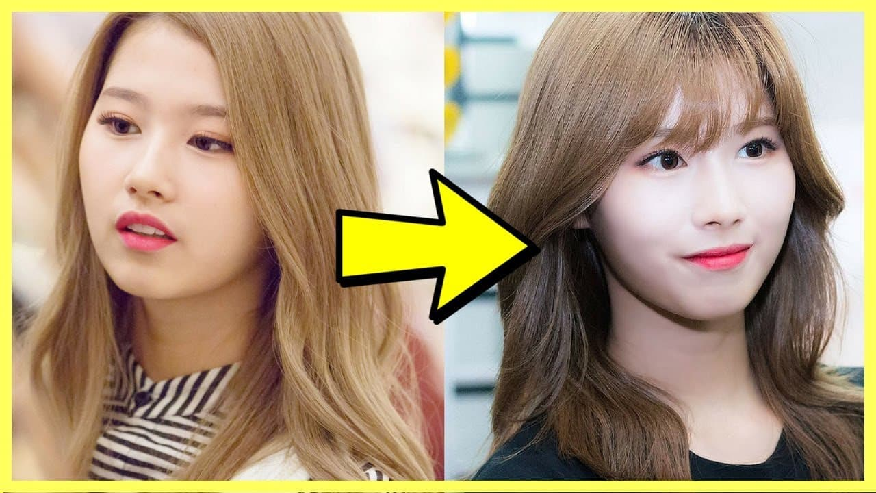 Iu Plastic Surgery Before And After photo - 1