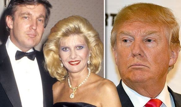 Picture Of Trumps Before Plastic Surgery photo - 1