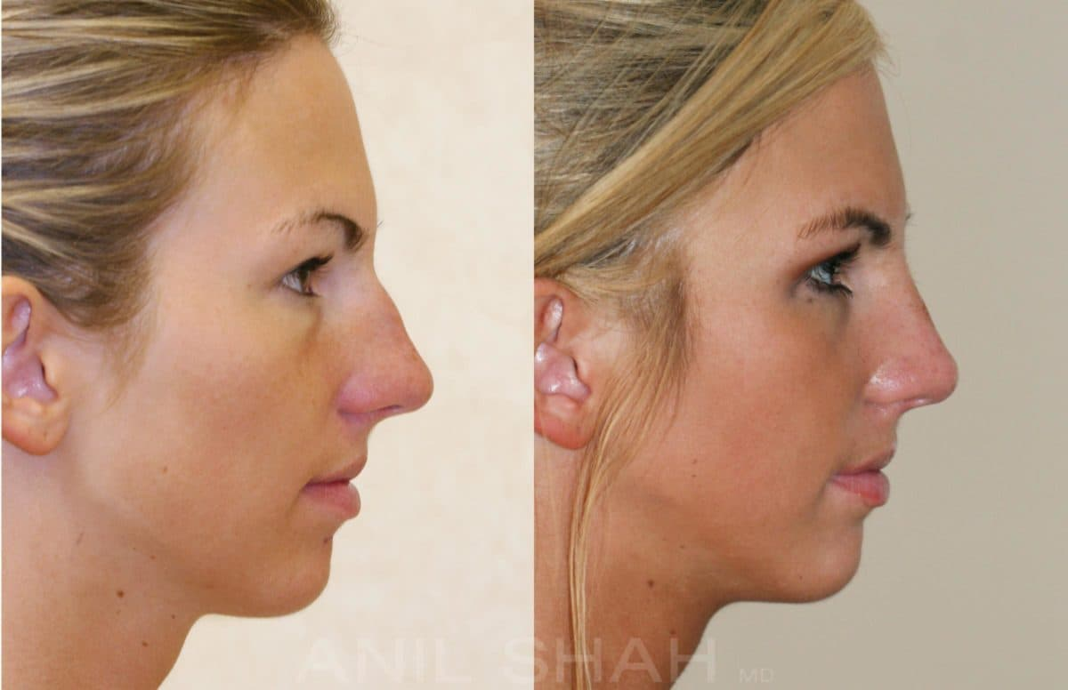 Plastic Nose Surgery Before And After photo - 1