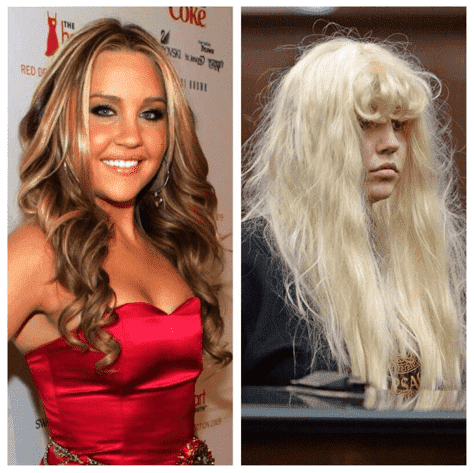 Plastic Surgery Before And Now photo - 1