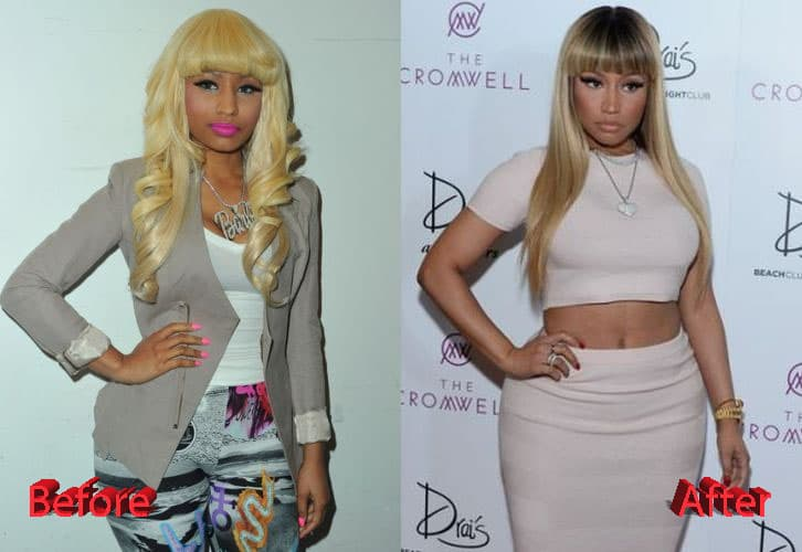 Plastic Surgery Before And After Show photo - 1
