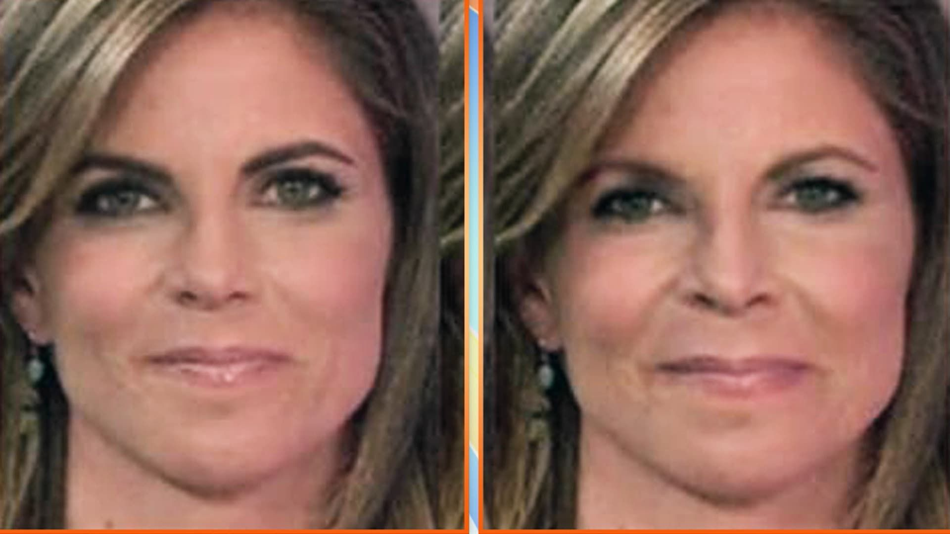 Plastic Surgery Before And After Smoker photo - 1