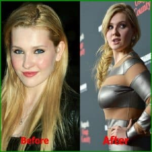 Plastic Surgery Boobs Before And After photo - 1