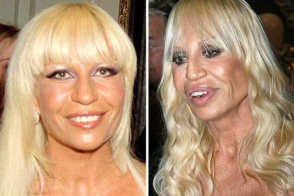 Versace Before Plastic Surgery photo - 1