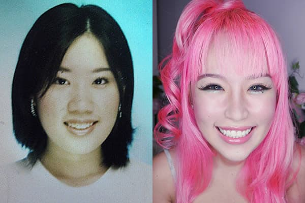 Xiaxue Before Plastic Surgery photo - 1