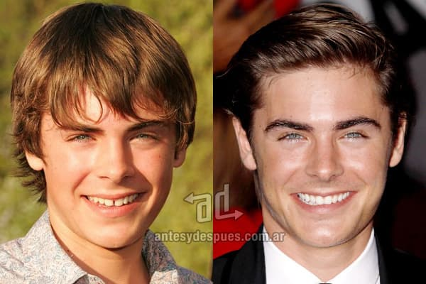 Zac Efron Before Plastic Surgery photo - 1