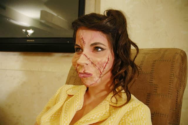mexico plastic surgery horror stories photo - 1