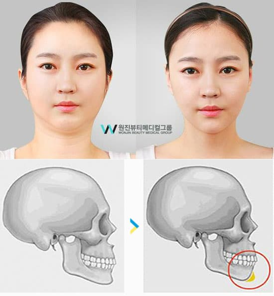 chin plastic surgery procedures photo - 1