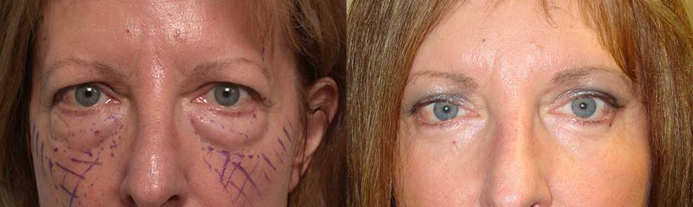 droopy eyelid plastic surgery photo - 1