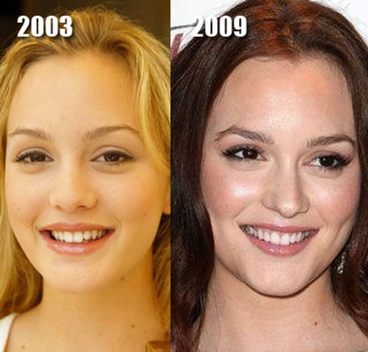 examples of good plastic surgery photo - 1
