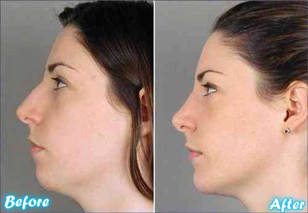 plastic surgery chin tuck cost photo - 1