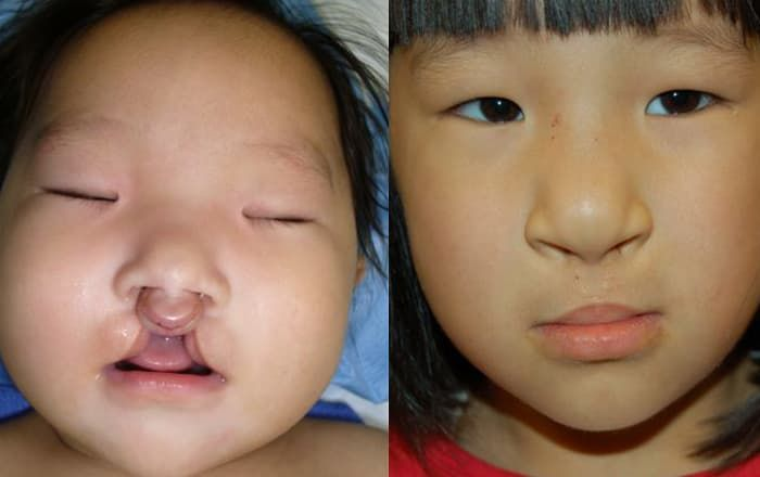 plastic surgery cleft lip adults photo - 1