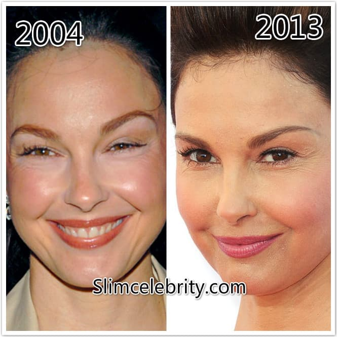 plastic surgery fillers for the face photo - 1