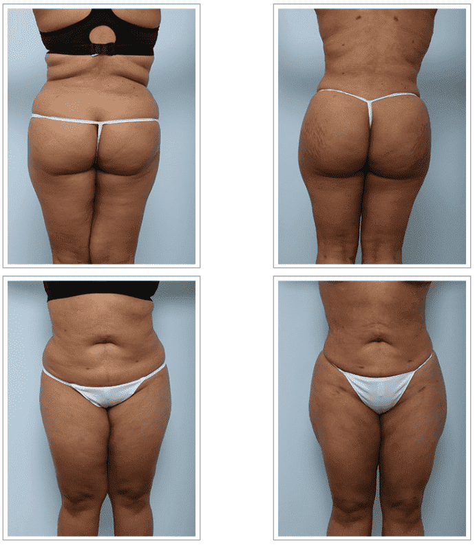 plastic surgery for buttocks implants photo - 1