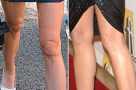 plastic surgery for knees photo - 1
