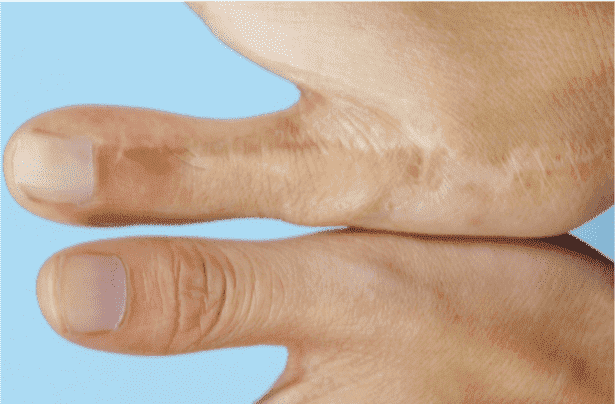 plastic surgery for missing fingers photo - 1