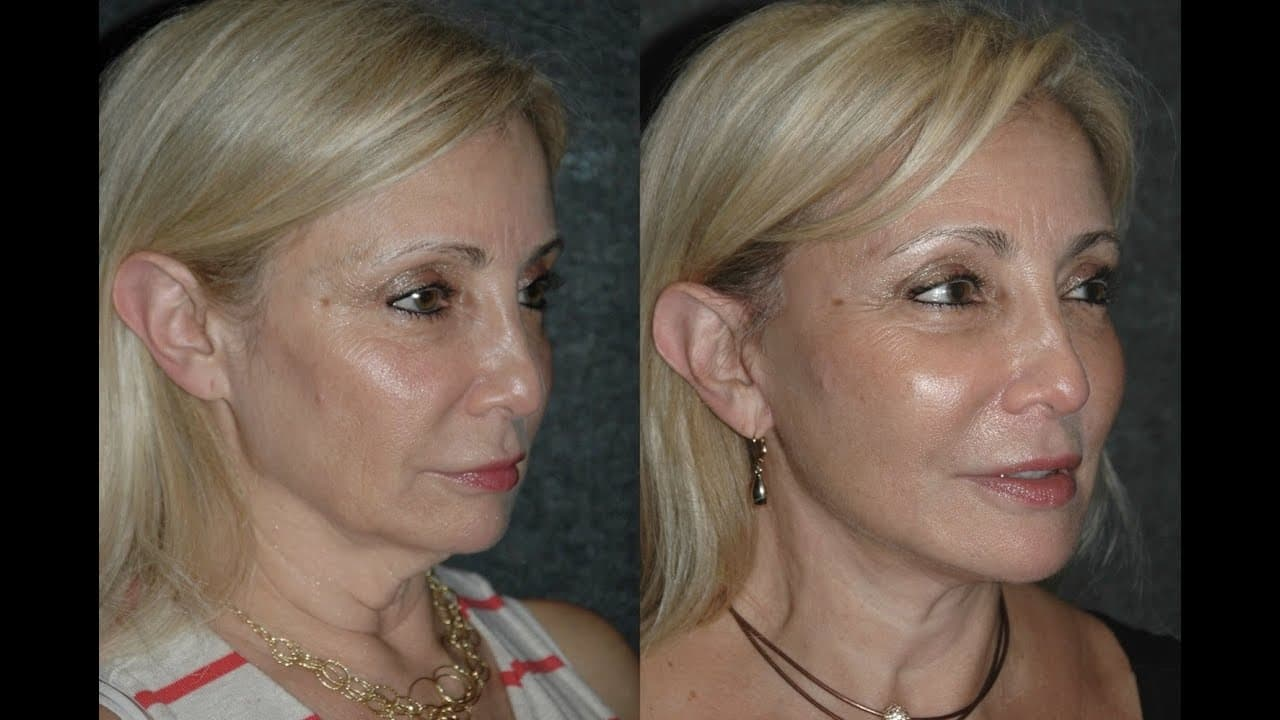 plastic surgery neck and jowls cost photo - 1