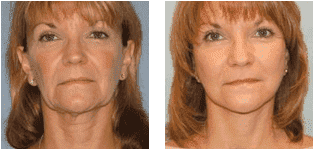 plastic surgery raleigh nc cost photo - 1