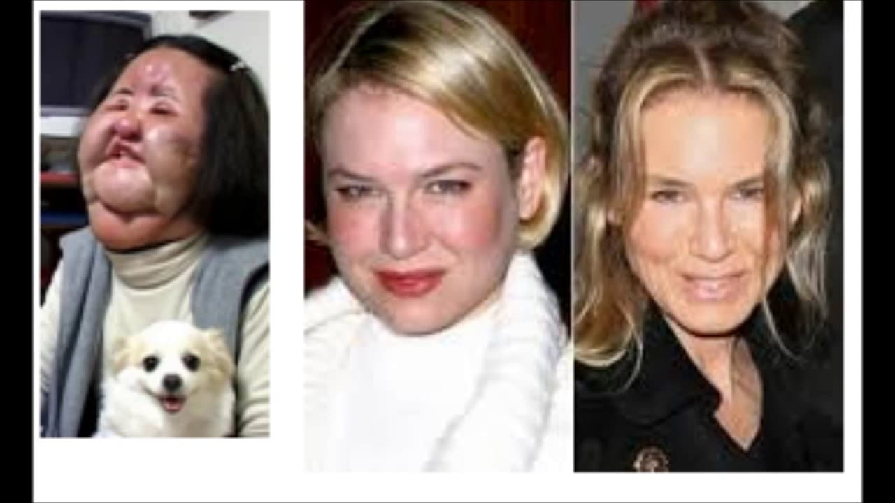 side effect of plastic surgery photo - 1