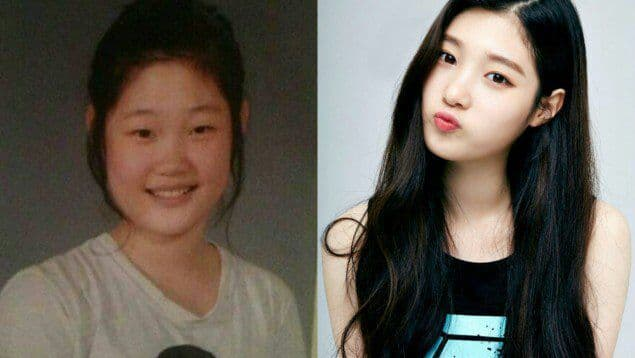 Hong Jin Young Before Plastic Surgery Celebrity Plastic