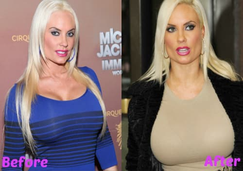 Coco Austin before and after surgery pics