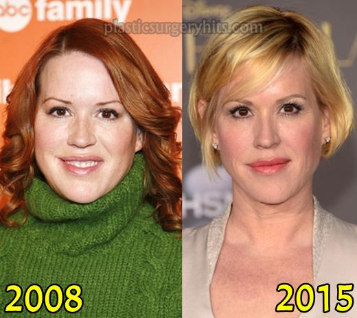 Molly Ringwald Chin Plastic Surgery Before After