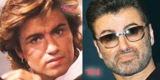George Michael plastic Surgery