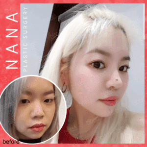 Plastic Surgery Korea