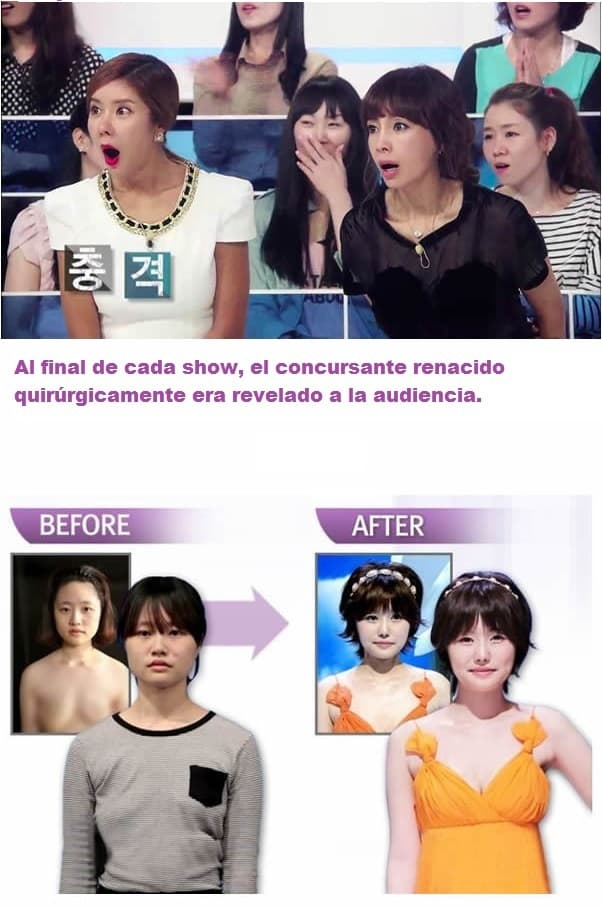 19 Before And After Photos From Korean Plastic Surgery Makeover Show photo - 1