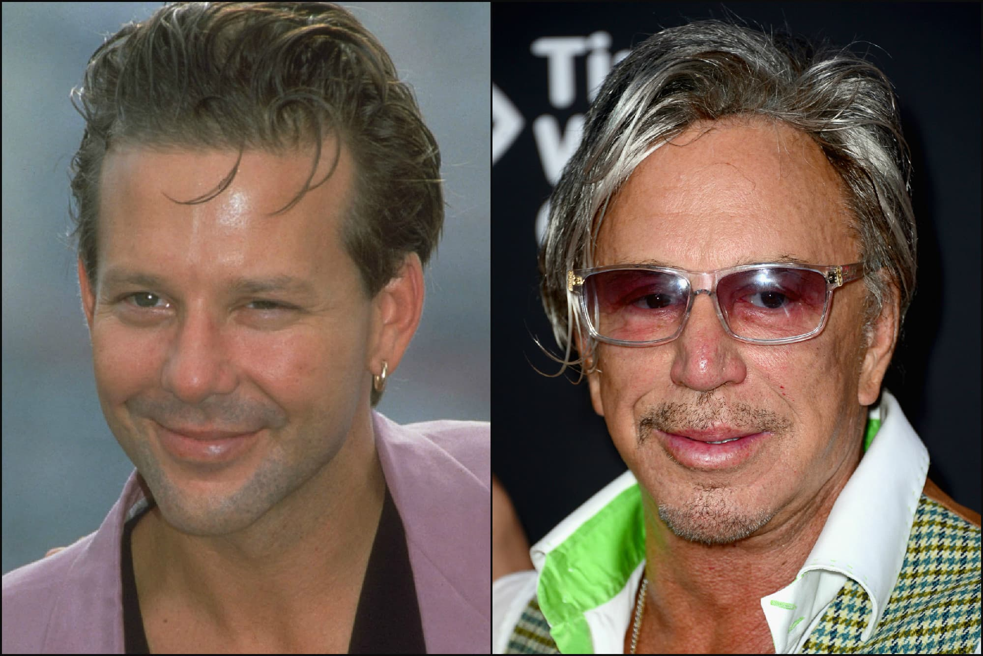 2016 Plastic Surgery Celebraties Before & After photo - 1