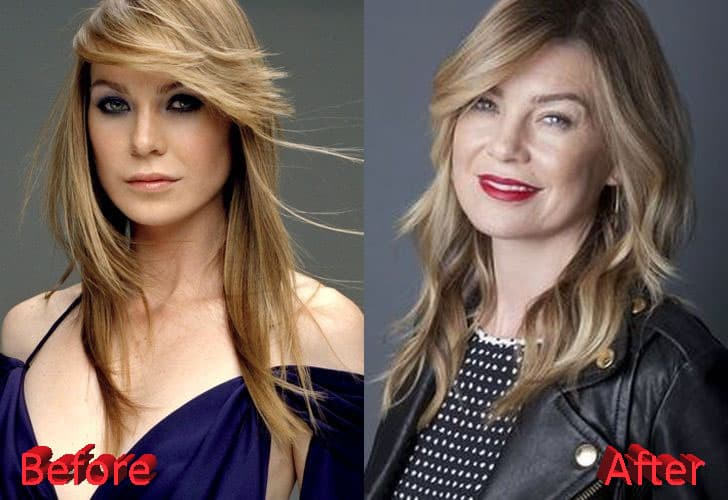 25 Actresses Before And After Plastic Surgery photo - 1