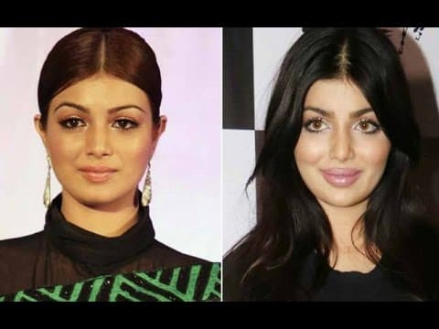 25 Bollywood Actresses Before And After Plastic Surgery photo - 1