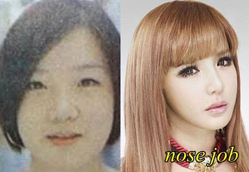 2Ne1 Before And After Plastic Surgery photo - 1