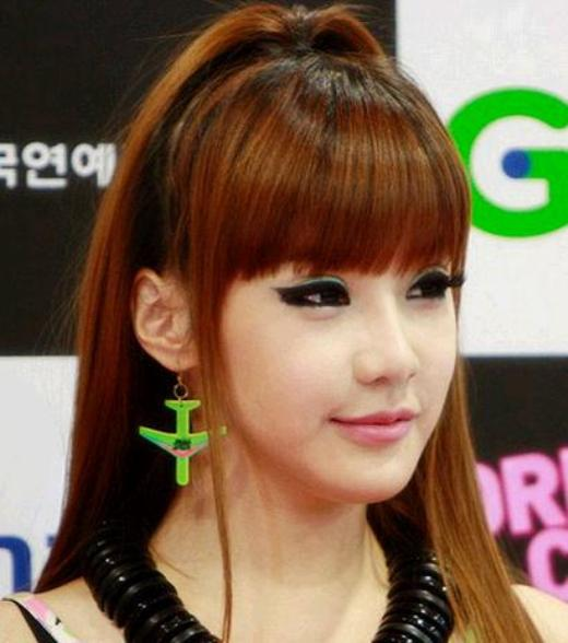 2Ne1 Plastic Surgery Before And After Photos photo - 1