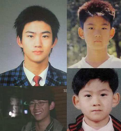 2Pm Before Plastic Surgery photo - 1
