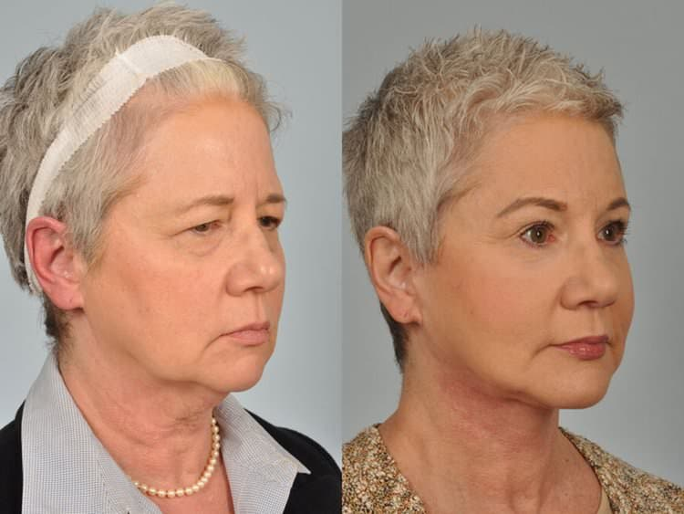 60 Year Olds Plastic Surgery Before And After photo - 1