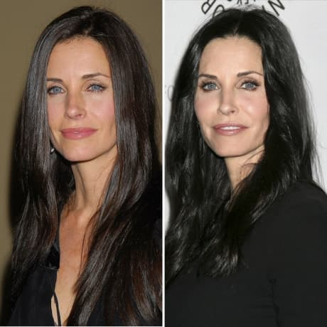 A Before And After Of Courteney Cox Plastic Surgery photo - 1